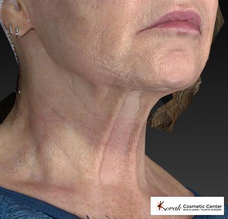 Kybella: Patient 2 - After Image 2