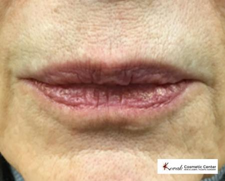 Injectables - Mouth: Patient 4 - After Image