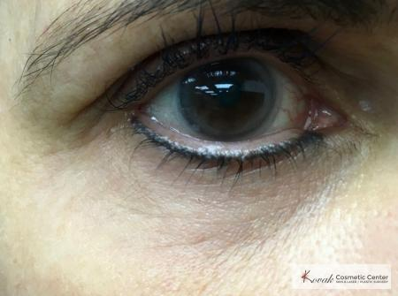 Under Eye Wrinkle Treatment with Agnes - After Image