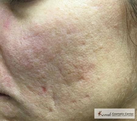Acne Scars treated with Venus Viva on 35 year old woman - Before Image