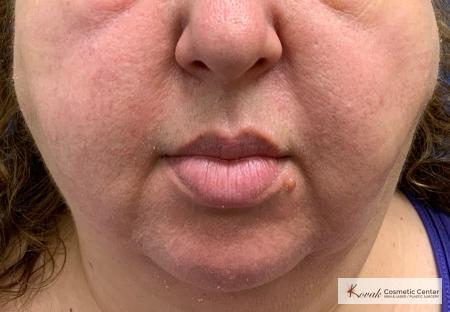 Laser Liposuction using the Vaser system of the jawline on a 52 year old female - After Image