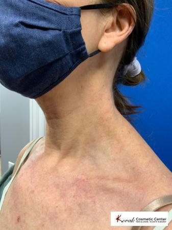 Microneedling on the neck of a 61 year old female using Scarlet - After Image 2