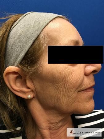 Full Face Laser Skin Resurfacing on a 70 year old woman - Before and After Image 3