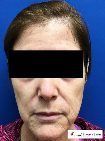Sculptra treatment to add volume to a 63 year old female - Before Image