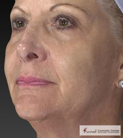 Injectables - Face: Patient 1 - After 2