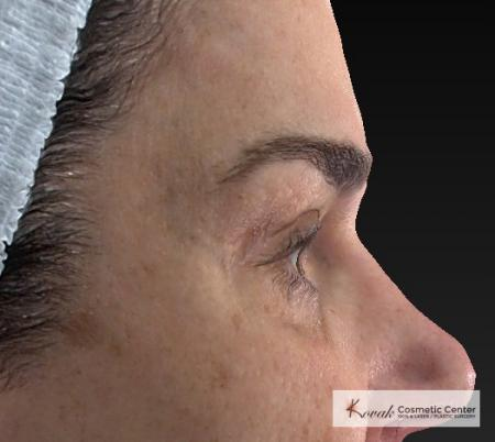Laser Skin Resurfacing - Face: Patient 3 - After Image