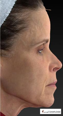 Silhouette Lift™: Patient 1 - Before Image