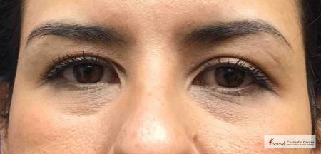Injectables - Face: Patient 5 - Before Image