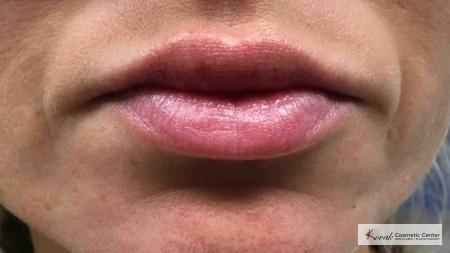 Lip Augmentation: Patient 3 - After Image