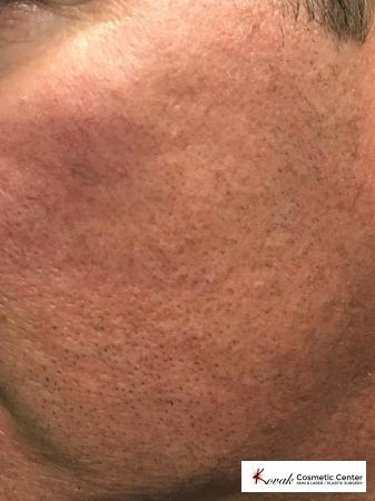 Acne Scars treated with Juvederm on 45 year old male - After 2