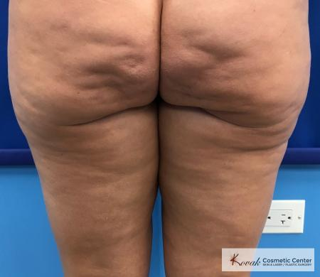 Cellulite Reduction: Patient 4 - Before Image
