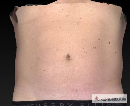 CoolSculpting®: Patient 19 - Before