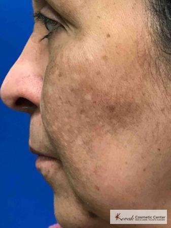 Melasma treatment using Venus Viva on a 57 year old female - After