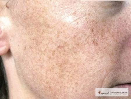 Tyte And Bryte Photorejuvenation: Patient 1 - Before Image