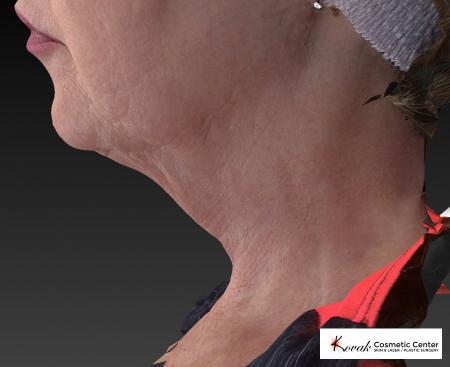 Kybella: Patient 2 - Before and After Image 4
