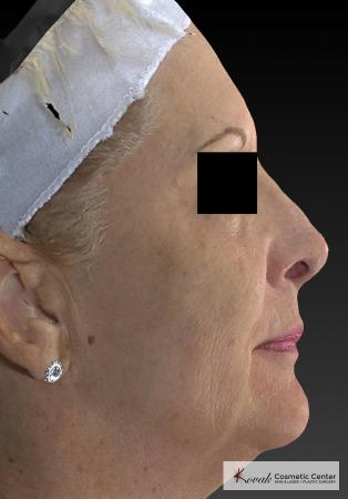 Sculptra®: Patient 6 - After Image
