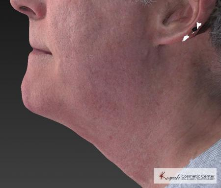Kybella: Patient 4 - After Image 2
