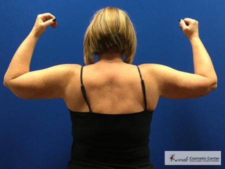 Laser Liposuction of the arms on a 42 year old woman - Before