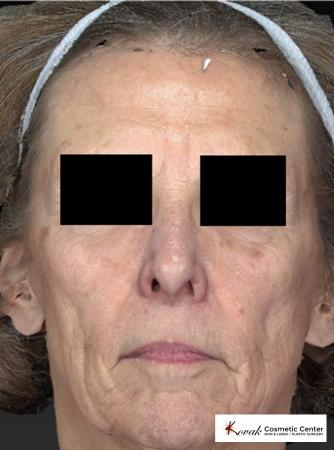 Sculptra®: Patient 2 - Before Image