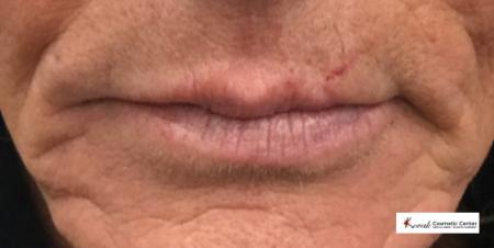 Injectables - Mouth: Patient 1 - Before Image