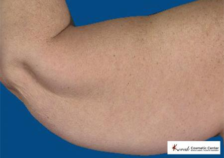 CoolSculpting®: Patient 14 - Before