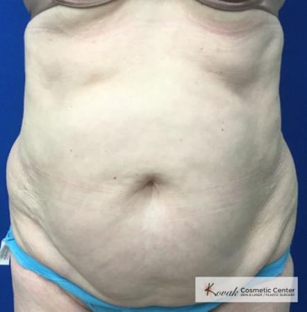 Slim Tyte: Patient 5 - After Image
