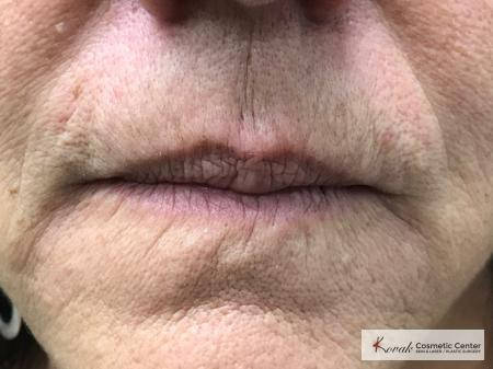 Restylane Silk for fine lines around the mouth on a 69 year old female - Before Image