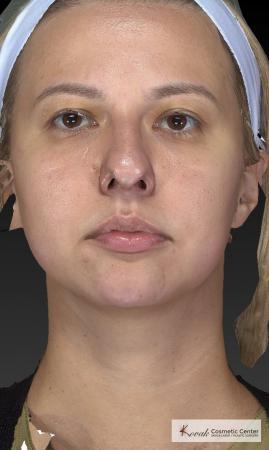 Restylane® Lyft: Patient 1 - After 4