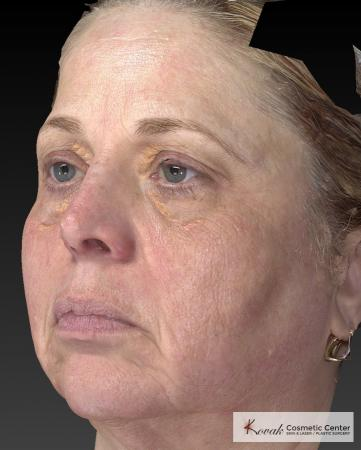 Tyte And Bryte – Face: Patient 3 - After Image 3