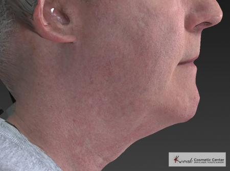 Kybella: Patient 4 - Before Image