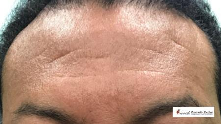 Restylane® Silk: Patient 7 - Before Image