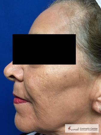 Full Face Laser Skin Resurfacing on a 70 year old woman - After Image 2