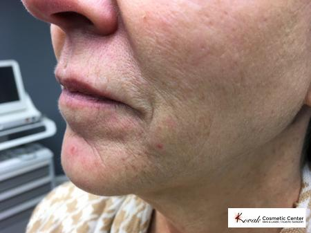Restylane® Silk: Patient 4 - Before and After Image 2