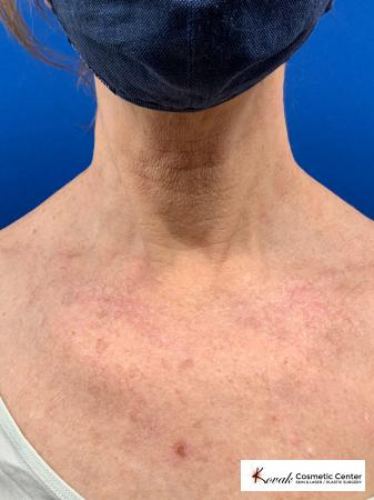 Microneedling on the neck of a 61 year old female using Scarlet - After Image 1