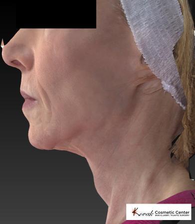 Sculptra®: Patient 1 - After 5