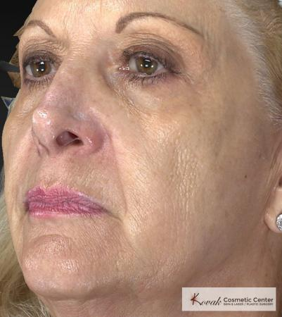 Injectables - Face: Patient 1 - Before 2