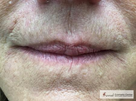 Restylane Silk for fine lines around the mouth on a 69 year old female - After Image