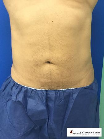 Emsculpt of the abdomen on a 50 year old male - After Image
