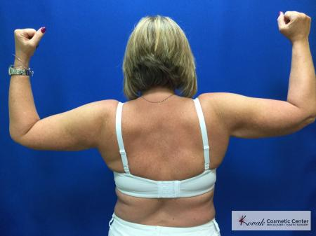 Laser Liposuction of the arms on a 42 year old woman - After