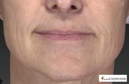Restylane® Silk: Patient 2 - After Image