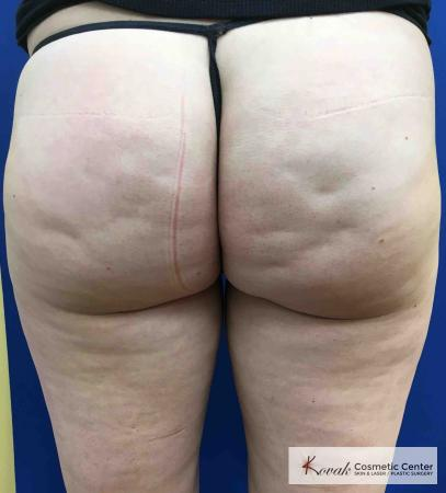 Cellulite Reduction: Patient 3 - Before Image