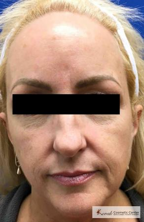 Injectables - Face: Patient 8 - Before Image