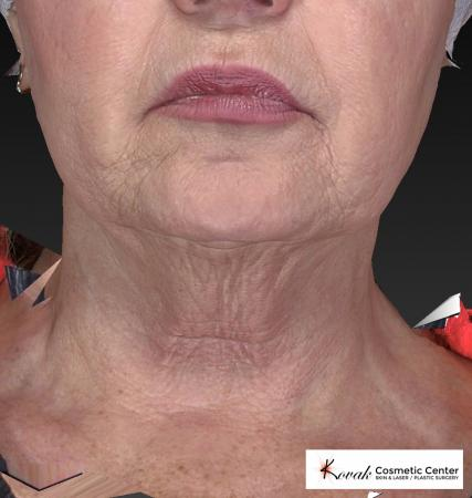 Kybella: Patient 2 - Before Image