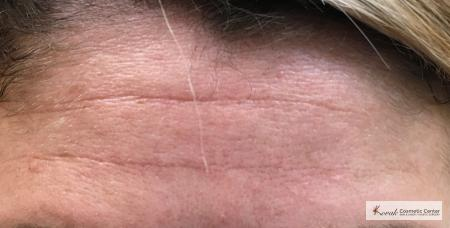Restylane Silk for Forehead Lines on a 40 year old woman - After