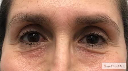 Restylane® Silk: Patient 11 - After Image
