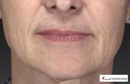 Restylane® Silk: Patient 1 - Before Image