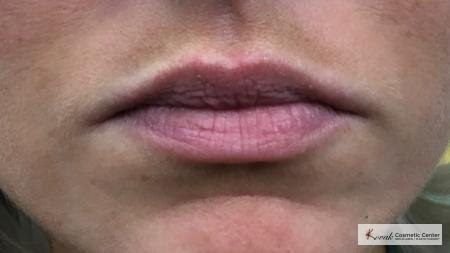 Lip Augmentation: Patient 3 - Before Image