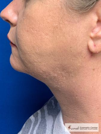 Laser Liposuction of the neck of a 44 year old female - After Image