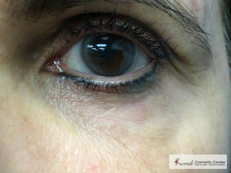 Under Eye Wrinkle Treatment with Agnes - After 2