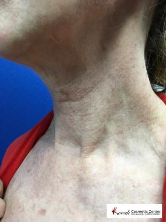 Microneedling on the neck of a 61 year old female using Scarlet - Before and After Image 2